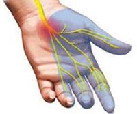 полинейропатия физиотерапия